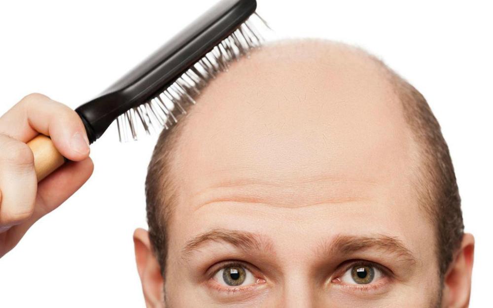 ¿Cómo la pérdida del cabello y la diabetes se conectan?