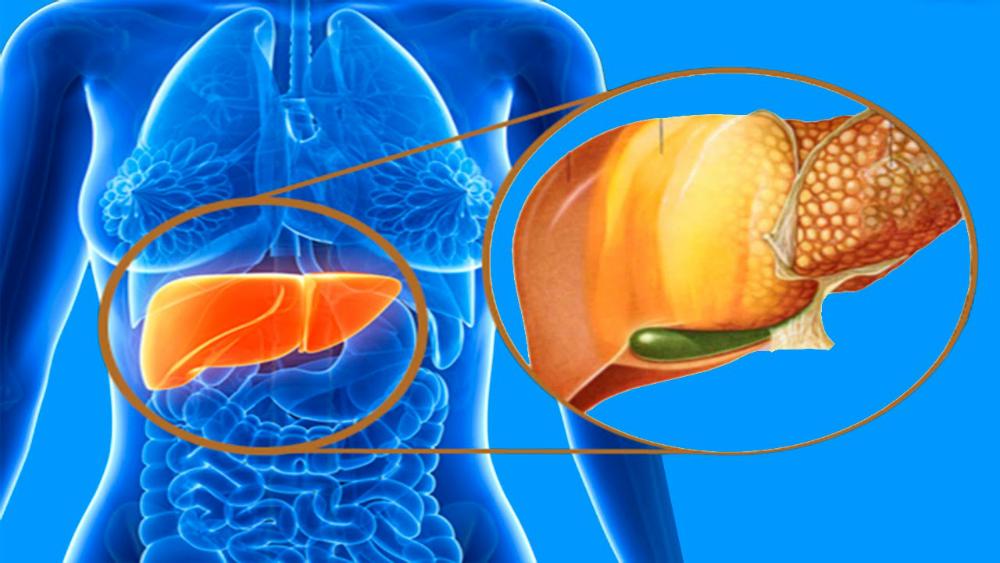 Las investigaciones vinculan la enfermedad del hígado graso a la diabetes tipo 2