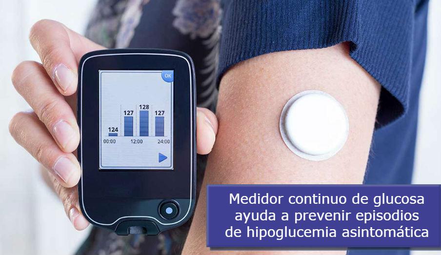Monitor de glucosa en tiempo real ayuda a las personas a prevenir episodios severos de hipoglucemia asintomática