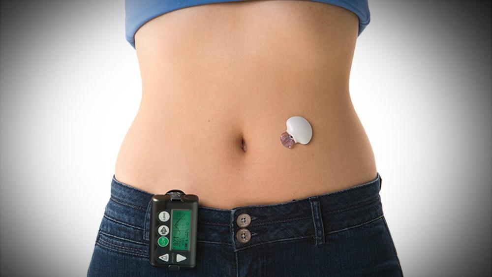 Investigadores en Colorado ayudan con el sistema de páncreas artificial para la diabetes tipo I en pacientes con diabetes