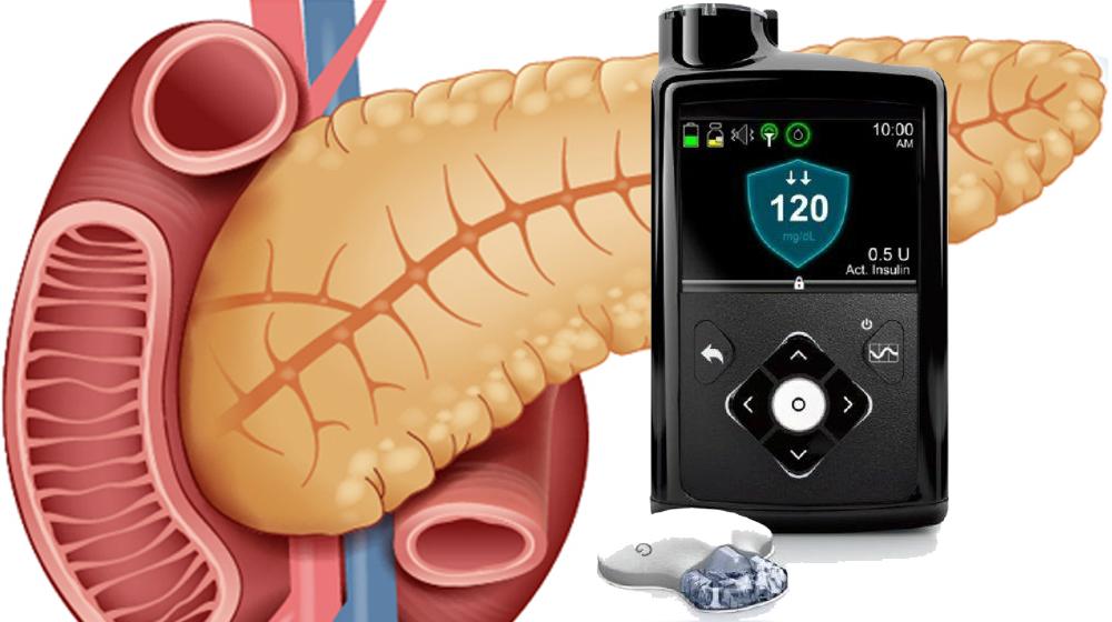 Páncreas artificial ayuda a los niños pequeños a controlar mejor su diabetes