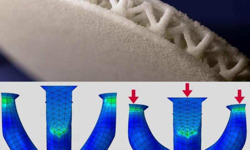 Plantillas impresas en 3-D hechas a la medida para los pacientes con diabetes