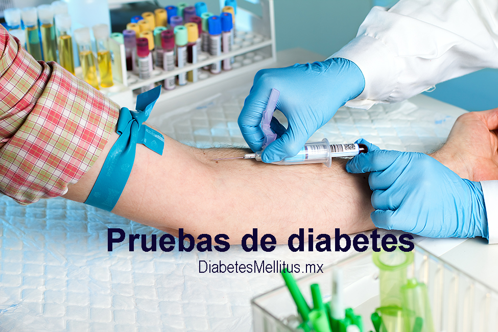 examenes de laboratorio para diagnosticar diabetes mellitus