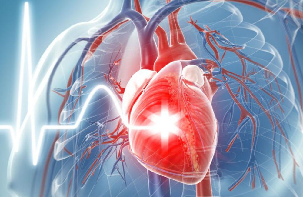Las sulfonilureas y el riesgo de eventos cardiovasculares e hipoglucemia
