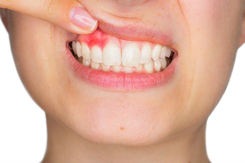 Grave enfermedad de las encías ligada a la diabetes