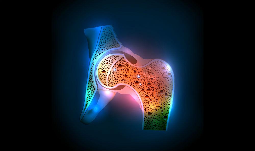 La osteoporosis y la diabetes: pros y contras de los regímenes antidiabéticos